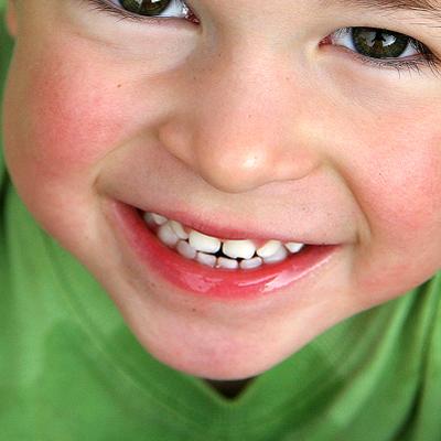 cabinet d 39 orthodontie de l 39 enfant et de l 39 adulte orthodontie linguale et esth tique docteur. Black Bedroom Furniture Sets. Home Design Ideas